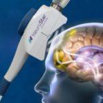 TMS治療(経頭蓋磁気刺激治療)とは?有効性・費用について